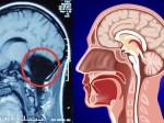 Donna accusa problemi di nausea, ma scopre di essere senza cervelletto