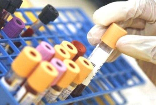 Per scoprire il tumore al polmone basta una semplice analisi del sangue