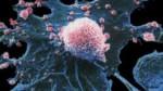 Le persone alte sarebbero più a rischio cancro