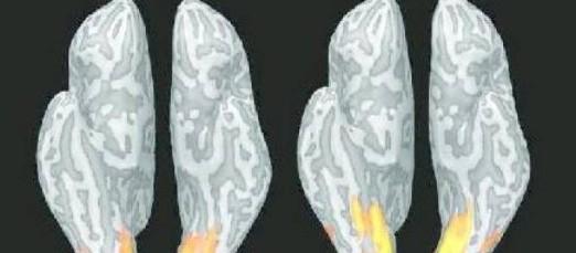 Emicrania, scattata la foto del mal di testa