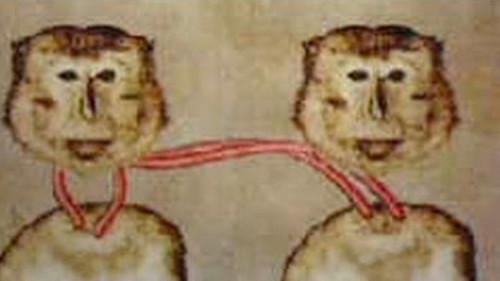 Entro il 2017 il primo trapianto di una testa umana