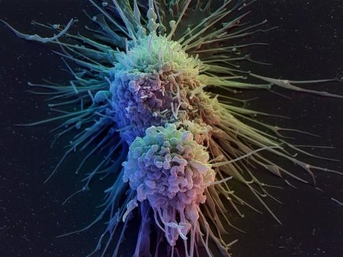 Terapia con cellule immunitarie per sconfiggere il cancro