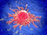 Cellule tumorali, ora la biopsia diventa digitale