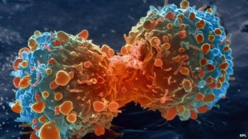 Vaccino universale contro i tumori: la scoperta in Germania