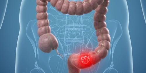 Cancro al colon: aumentano i morti, ecco i sintomi