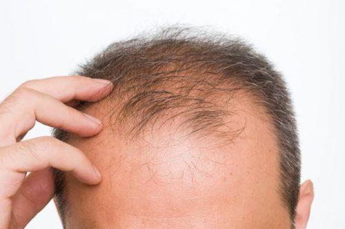 Predire la caduta dei capelli: in arrivo un metodo infallibile?