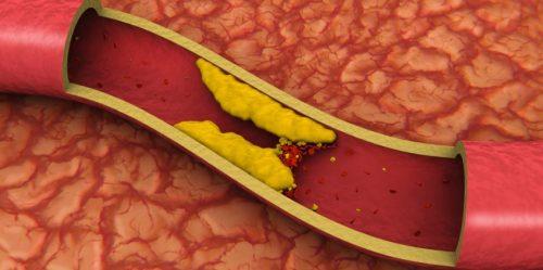 Colesterolo: una siringa per cancellarlo per sempre dal nostro corpo