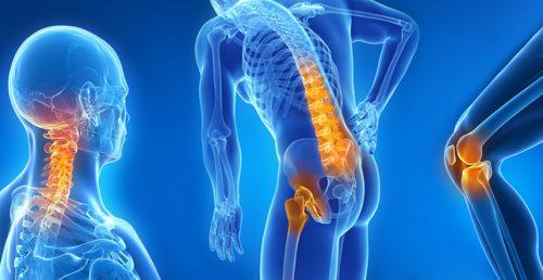 Artrosi anca e ginocchio: in Italia, le donne sono le più colpite