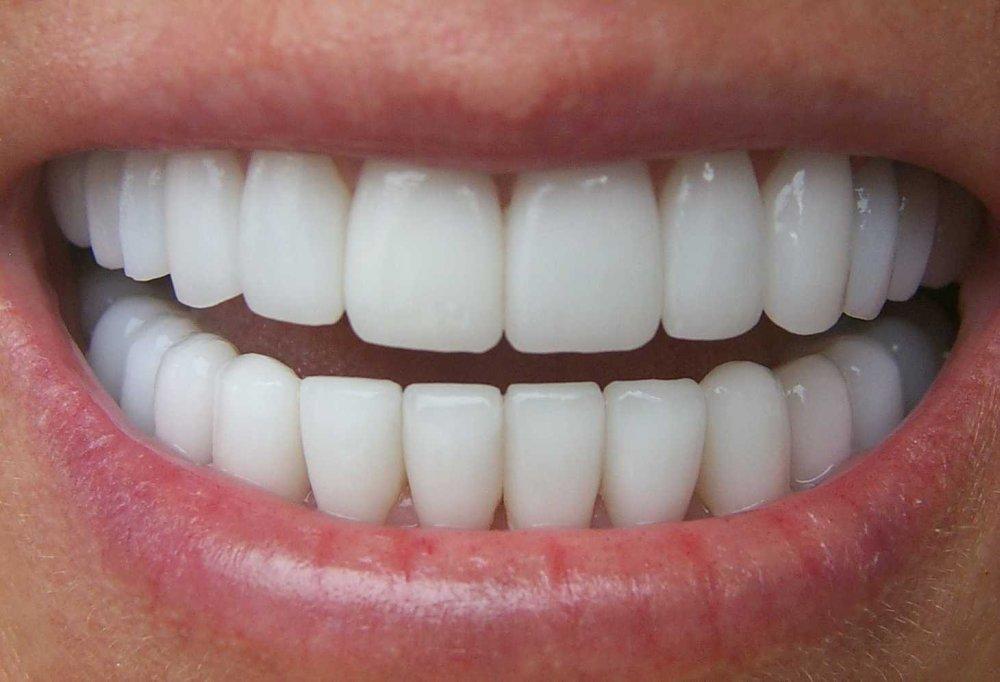 La visita dal dentista e il trattamento dei problemi ai denti