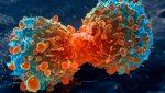 Cure alternative al cancro? Aumentano il rischio di morte di due volte