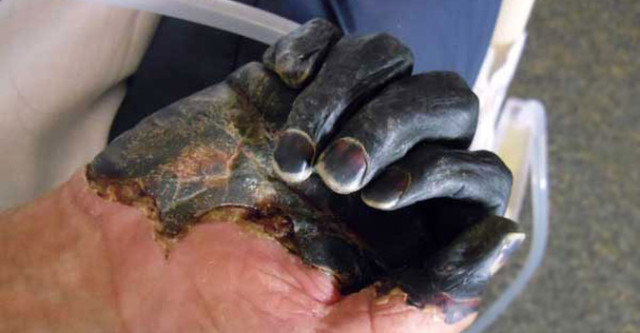 Usa: nuova allerta peste, scoperte pulci infette in Arizona