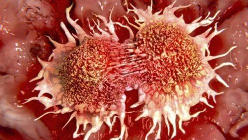 Cancro, nel 2017 mille diagnosi al giorno: più casi al nord