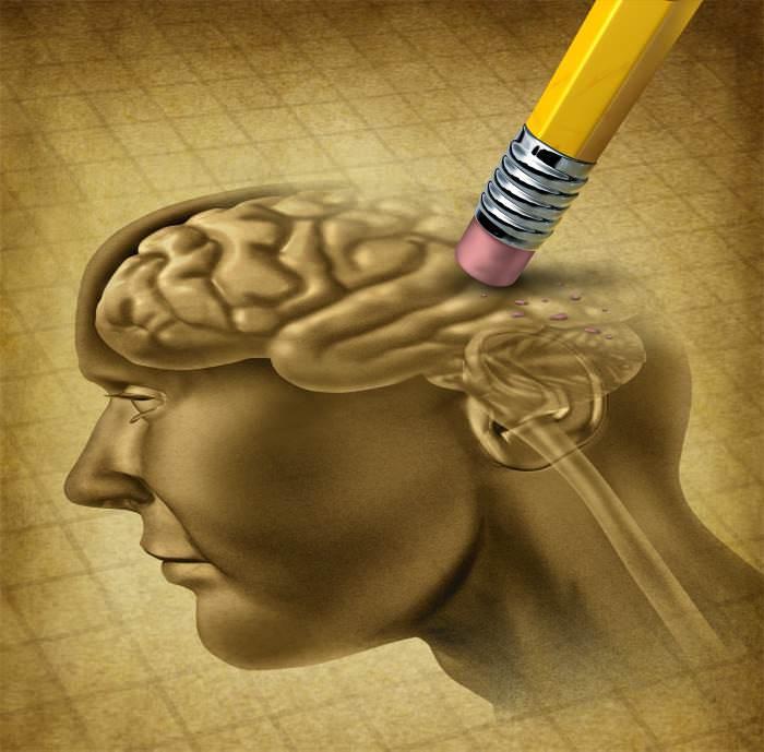 Alzheimer: dall'Australia arriva una nuova speranza per curarla