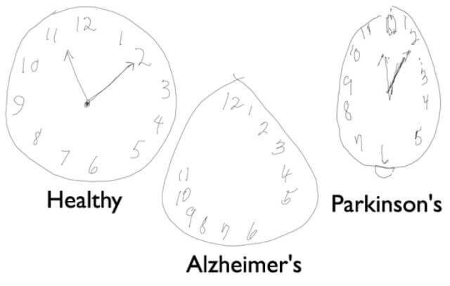 Alzheimer e Parkinson, un nuovo metodo ne permette la diagnosi precoce
