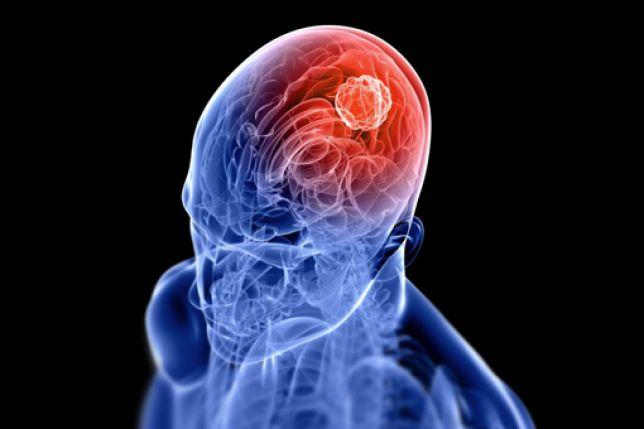 Ictus ischemico, in campo le nuove terapie per ridurne disabilità e mortalità