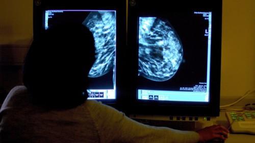 Cancro, presto l'arrivo del biochip che elimina le cellule tumorali