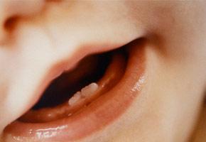 Perugia, bimba nata con due denti