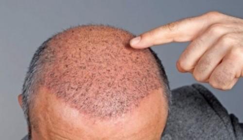 Calvizie: creato un farmaco che fa ricrescere i capelli