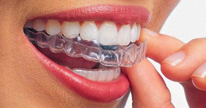 Apparecchio denti trasparente Invisalign: sorridere senza ferraglie
