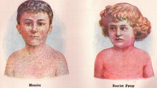 Scarlattina: torna la malattia infettiva causata dallo streptococco
