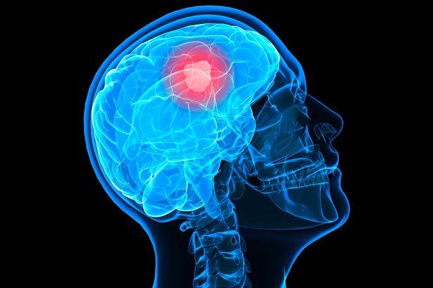 Tumore al cervello: l'istruzione tra le possibili cause?