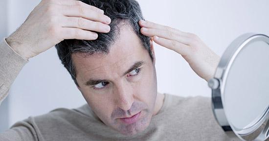 Caduta dei capelli: come combatterla con l'alimentazione