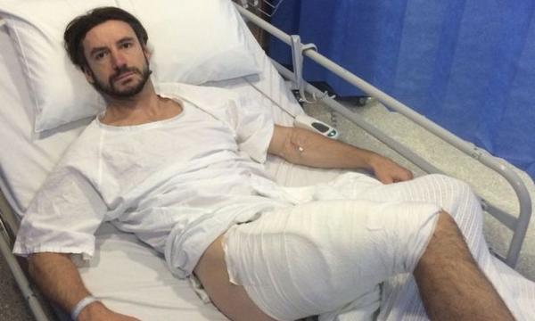 Esplode iPhone in tasca, ciclista australiano ustionato