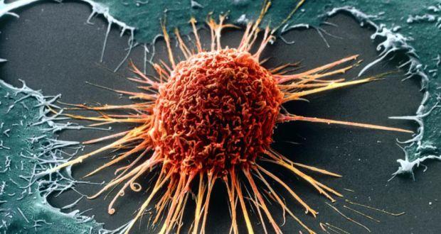Tumori, l'allarme degli esperti: 1000 casi al giorno, ecco come evitarli