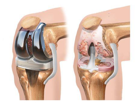 Protesi ginocchio: meglio la mini invasiva e potenziare i muscoli