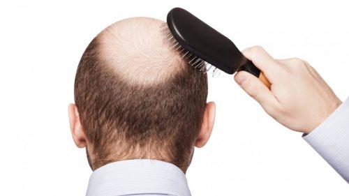 Caduta dei capelli: scoperta proteina responsabile di calvizie e capelli grigi