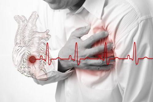 Scompenso cardiaco: sintomi e fattori di rischio