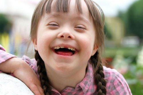 Sindrome di Down: in Islanda nascite vicine allo zero