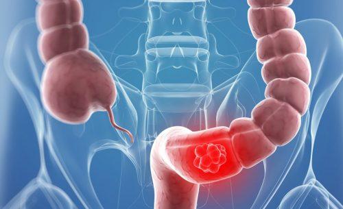 Salute: gli alimenti da evitare per prevenire il cancro al colon