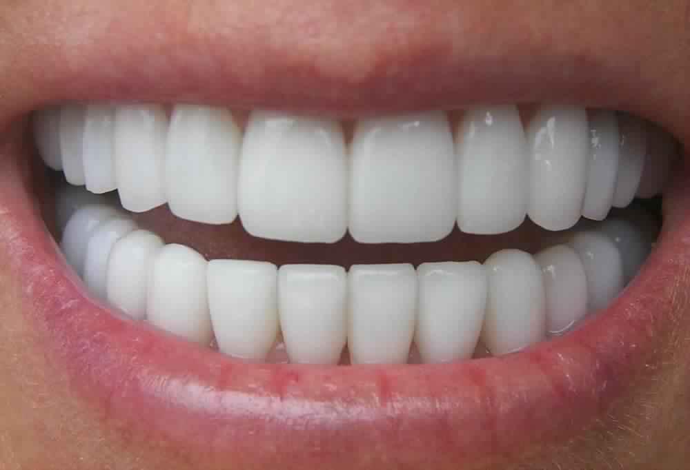 Scegliere un buono studio dentistico a Bari