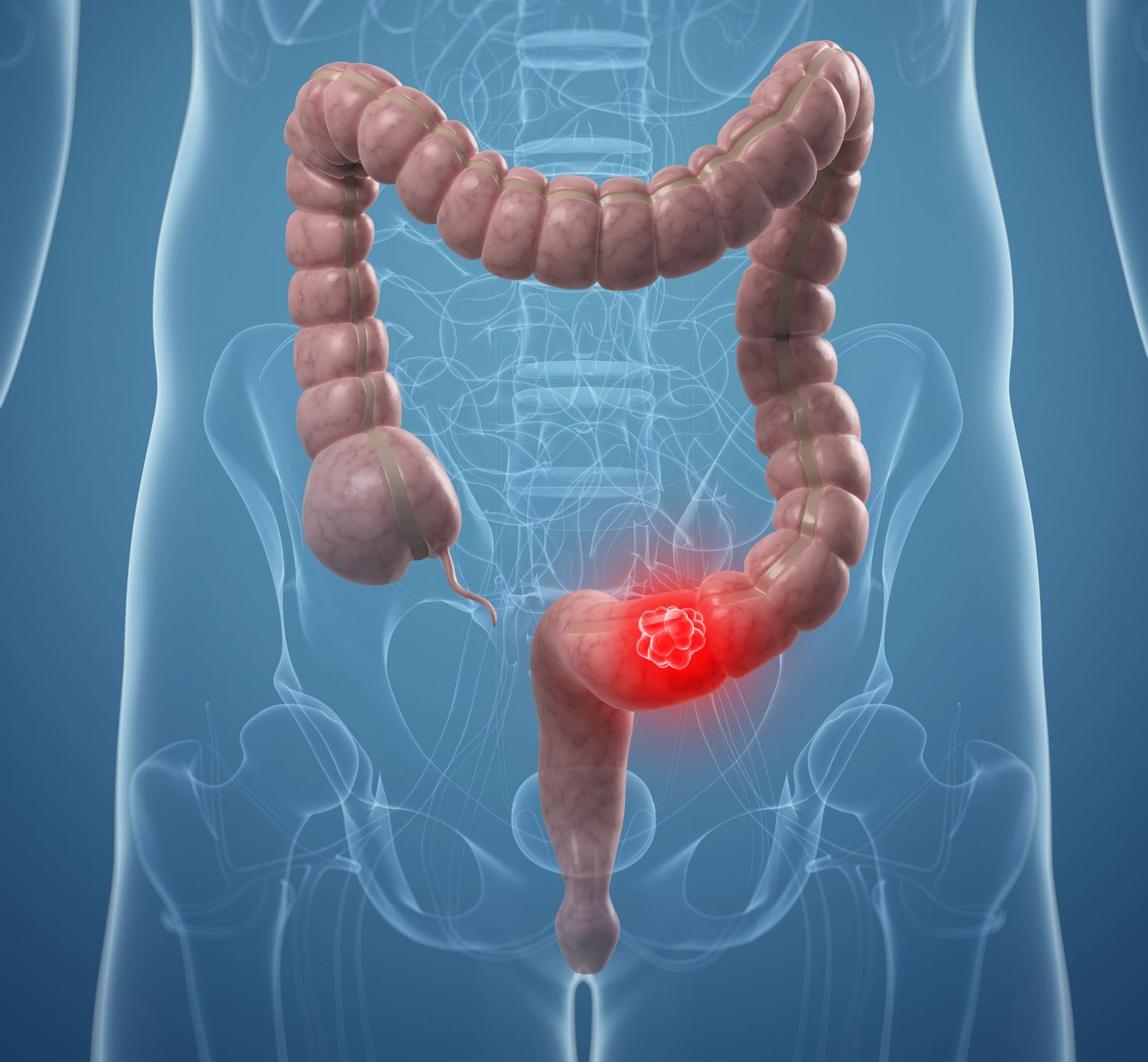 Cancro al colon: gli effetti benefici del latte e derivati