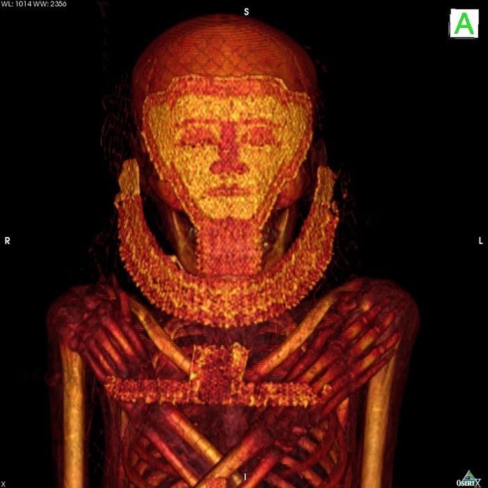Egitto: scoperti i tumori più antichi in assoluto