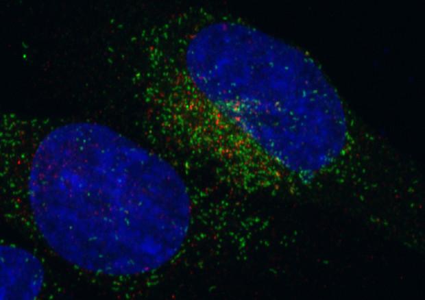 Salute: scoperto il funzionamento della droga dei tumori