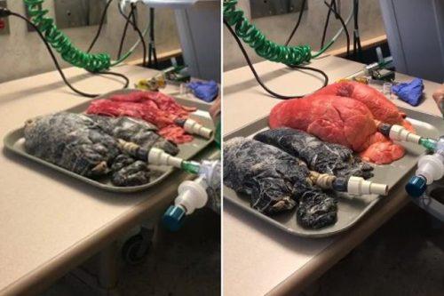 Salute: polmone 'sano' e di fumatore messi a confronto, le immagini shock