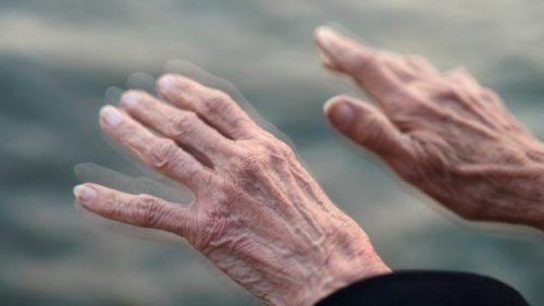 Morbo di Parkinson, il mondo verso pandemia