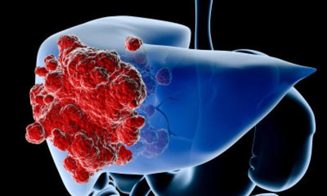 Salute: i principali sintomi del tumore al fegato, il killer silenzioso