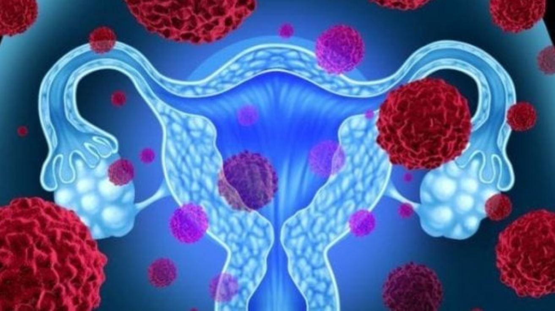 Tumore al seno e dell'ovaio, scoperto nuovo modo per fermarli