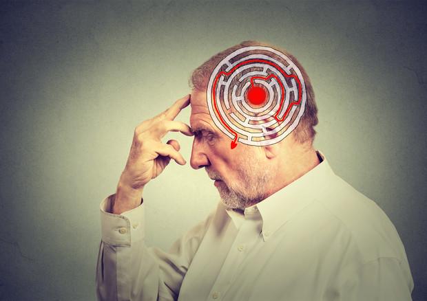 Morbo di Alzheimer: i primi allarmanti sintomi