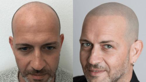 Tricopigmentazione vs Trapianto capelli vs Tatuaggio (e perché sceglierai la prima)