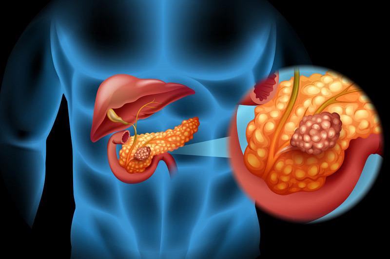 Aumentano i casi di cancro al colon e pancreas. Cresce anche la mortalità.