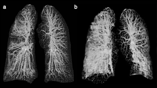 Ecco come il Coronavirus distrugge i polmoni