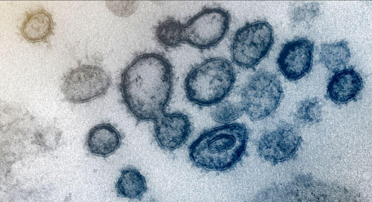 Coronavirus e vaccino di Oxford: non è vero che i macachi si sono ammalati
