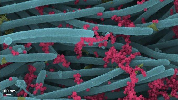 Coronavirus: gli scienziati mostrano la prima immagine dell'infezione da COVID-19