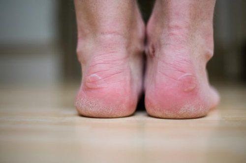 COVID-19: non solo febbre e dispnea. Gli altri sintomi secondo una ricerca inglese