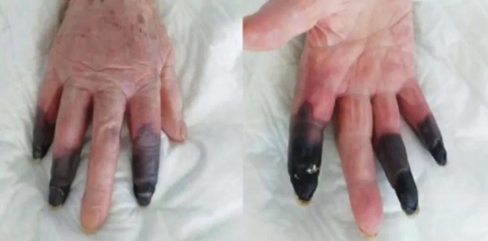 Tre dita in gangrena amputate a causa del COVID. Nuova conseguenza del virus