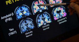 Alzheimer, svolta storica: la Fda approva il primo farmaco